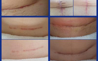 Przedstawiamy Wam efekty naszej październikowej pracy z pacjentkami po zabiegach uroginekologicznych
