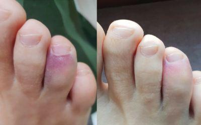Spójrzcie jak po zaledwie jednym zabiegu INDIBA wygląda stłuczony palec 👈👉