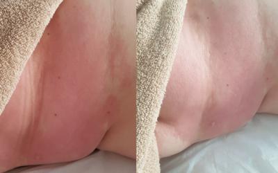 Mastektomia – Pacjentka, lat 50, nowotwór złośliwy piersi prawej.